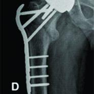 Internal Fixation of an Intertrochanteric Fracture after Resurfacing Arthroplasty: A Case Report