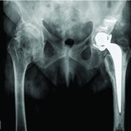 Technical Considerations of Complex Primary Total Hip Arthroplasty in a Rare Case of Combined Achondroplasia and Hereditary Multiple Exostosis Syndromes