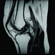 Arthroscopic Anterior Cruciate Ligament Re-Repair Using Internal Brace Augmentation – A Case Report