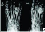 Bizarre Parosteal Osteochondromatous Proliferation– A Case Series of Typical and Atypical Presentations
