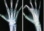 Treatment for a Metacarpal Shaft Fracture using Locked Wire Fixator: A Case Report of New Surgical Technique