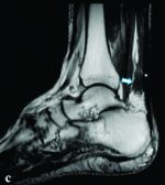 Ultrasound and Magnetic Resonance Imaging Diagnosis of Isolated Tear of the Accessory Soleus Tendon: A Case Report and Review of the Literatures