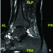 Unusual Presentation of a Swelling in the Achilles Tendon After an Acute Rupture: A Case Report