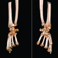 Isolated Volar Dislocation of the Distal Radioulnar Joint: A Case Report
