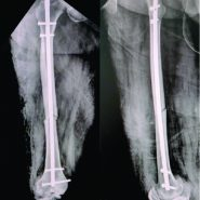 Exchange K-nailing, Augmented Plating Technique for Atypical Femur Diaphyseal Non-union, and Implant Failure – A Case Report