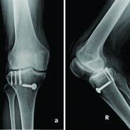 Anterior Cruciate Ligament Rupture with Medial Collateral Ligament Tear with Lateral Meniscus Posterior Root Tear with Posterolateral Tibia Osteochondral Fracture: A New Injury Tetrad of the Knee
