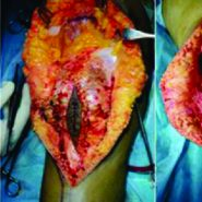 Excision of Osteosarcoma of Patella without Extensor Mechanism Reconstruction: A Case Report