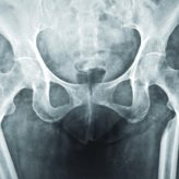 A Case Report of Bisphosphonate-induced Bilateral Osteoporotic Subtrochanteric Fracture Femurii: Review of Literature