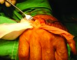Intratendinous Epidermoid Cyst after Traumatic Penetration of Foreign Body: A Very Rare Case Report
