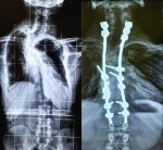 Management of Proximal Thoracic Kyphoscoliosis with Early Myelopathy in a Young Adult with Neurofibromatosis Type 1: A Case Report and Review of Literature