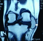 A Large Posteromedial Parameniscal Cyst Masquerading a Baker's Cyst: An Unusual Presentation