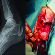 Partial Heel Pad Avulsion with Open Calcaneal Tuberosity Fracture with Tendo-achilles Rupture – A Case Report
