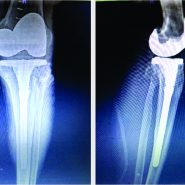 Primary Total Knee Replacement in a Case of Lateral Tibial Condyle Delayed Union with Severe Grade 4 Osteoarthritis Knee – A Case Report