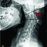 Management of Neglected Odontoid Fracture in the Ankylosed Spine: A Case Report and Technical Note