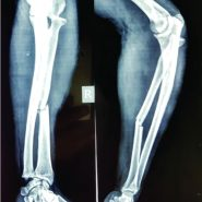 Isolated Radial Shaft Fracture with Unreducable Posterior Dislocation of the Radial Head in Adult: A Case Report