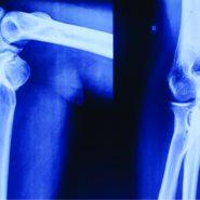 Osteochondroma of Proximal Ulna – A rare case presentation