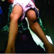 Proximal Tibial Epiphysis Injury (Flexion Type, Salter–Harris Type 1)