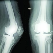 Hinged Total Knee Replacement for an Arthritic Knee Following a Neglected Knee Dislocation: A Case Report
