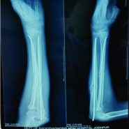 An Extremely Rare Combination of Monteggia Equivalent Type 1 Lesion (diaphyseal Ulna and Radial Neck Fractures Without Dislocation) with Ipsilateral Radius Shaft and Distal Radius Fractures in a Child