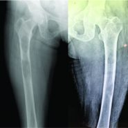 Multiple Brown tumors in a Case of Primary Hyperparathyroidism with Pathological Fracture in Femur