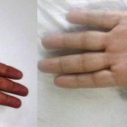 Tubercular Tenosynovitis of Hand: A Rare Presentation
