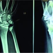 Isolated Intra-articular Displaced Distal Ulna Injury: A Rare Case Report and Review of Literature
