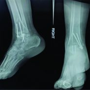 Combined Talus Fracture with Medial Malleolar Fracture: A Case report with Review of Literature