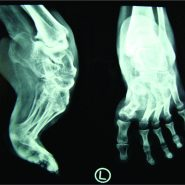 Single-Stage Correction of Severe Rigid Ankle Equinus Deformity by Talectomy and Tibiocalcaneal Fusion in Adulthood: A Case Report