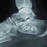 Pathological Fracture of Calcaneum: A Case Report