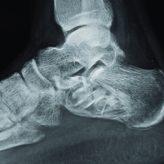 Pathological Fracture of Calcaneum: A Case Report