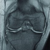 Ipsilateral Medial and Lateral Discoid Meniscus with Medial Meniscus Tear