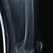 Long Term Bisphosphonate Therapy Induced Periprosthetic Femoral Stress Fracture in a Sliding Hip Screw Implant- A unique case report