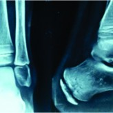 Tuberculosis of Calcaneum – A Rare presentation