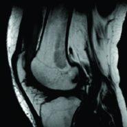 Arthroscopic Synovectomy in Bilateral Lipoma Arborescens