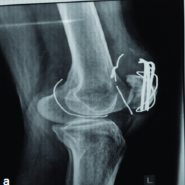 Intra-articular Migration of Broken Patellar Tension Band Wire: A Rare Case