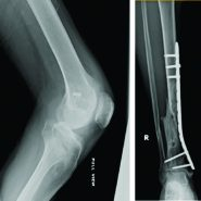 Ipsilateral Hip and Knee Dislocation with Open Tibial Fracture: A Case Report of a Limb Threatening Injury