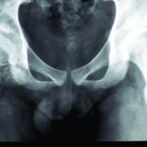 Surgery of a Rare Case of Multiple Synovial Osteochondromatosis of the Hip Joint