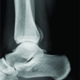Subperiosteal Hematoma of the Ankle