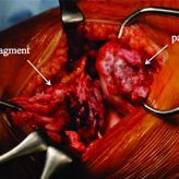 A Case Report of Sleeve Fracture of the Patella in a Shield