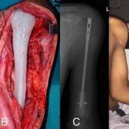 Reconstruction of Proximal Humerus Using Custom Made Acrylic Prosthesis in Malignant Bone Tumors