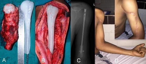 reconstruction of proximal humerus using custom made