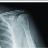 Core Decompression with Synthetic Grafting as a Joint Preservation Strategy in Humeral Avascular Necrosis Due to Sickle Cell Anemia: A Case Report