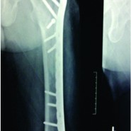 Treatment of Non Unions of Subtrochanteric Fractures Using an Anatomical Proximal Femur Locked Compression Plate – A Prospective Study of 13 Patients