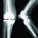 Charcot Fracture in the Calcaneus after Total Knee Arthroplasty: A Case Report