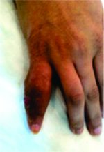 Tuberculous Dactylitis : Case Presentation and Functional outcome