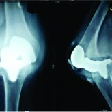 Failure of Polyethelene Insert Locking Mechanism after a Posterior Stabilised Total Knee Arthroplasty- A  Case Report