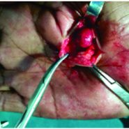 A rare case of Glomus Tumor of the Thenar Eminence of the Hand Misdiagnosed as Carpal Tunnel Syndrome.
