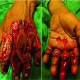 Mutilated Hand due to Sugarcane Machine – Challenge  to an Orthopaedician (Case series of three patients)
