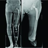 Primary Total Hip Replacement for a Femoral Neck Fracture in a Below-Knee Amputee