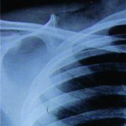 Delayed Presentation of Osteochondroma at Superior Angle of Scapula- A Case Report